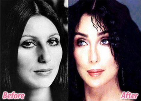 cher-face-comparison-then-now